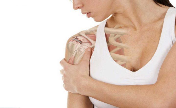 mujer con tendinitis