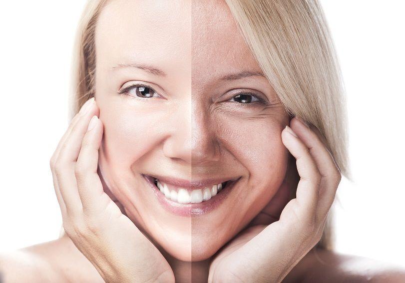 Mujer con arrugas y sin ellas