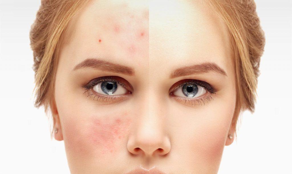 Chica con la mitad de su cara con acné y la otra mitad, no