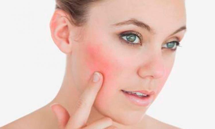 Chica con piel con acné