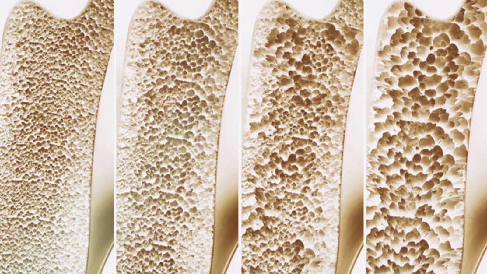 la osteoartritis y los cuidados