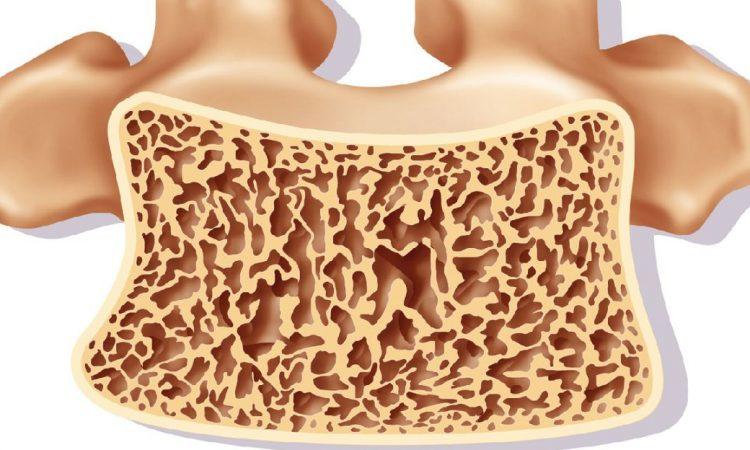 sabes lo que es la osteoartritis