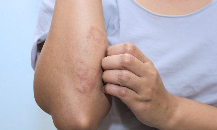 tengo marcas en la piel