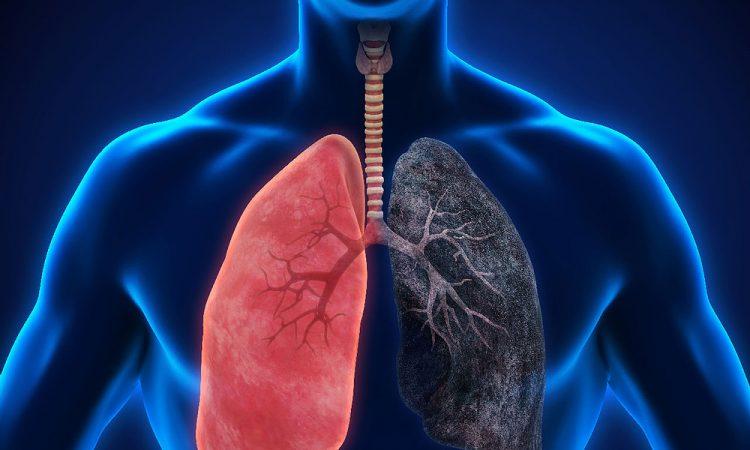pulmonía como cuidarte
